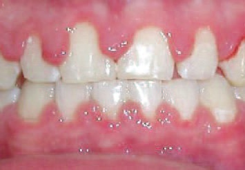 Wearing while braces gums swollen How to