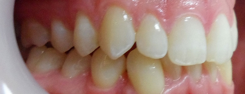 Before Clear Aligners