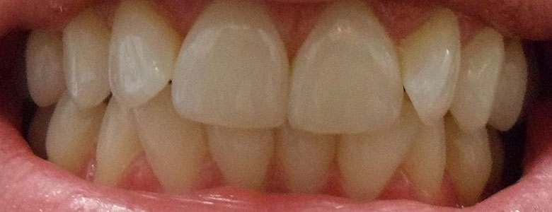 After Clear Aligners